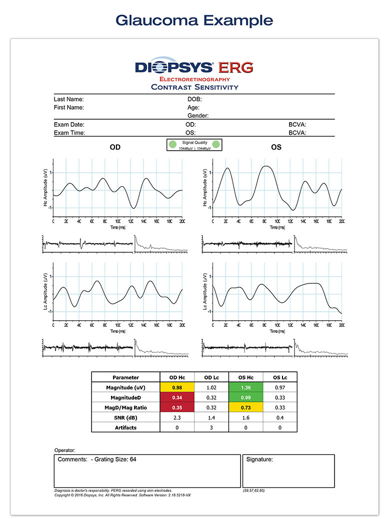 Diopsys glaucoma report